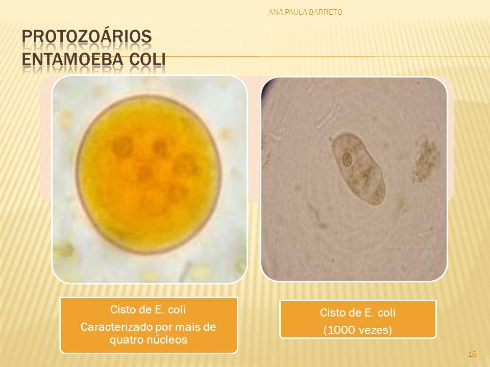 Cisto de E. coli Caracterizado por mais de quatro núcleos Cisto de E. coli (1000 vezes) ANA PAULA BARRETO 18