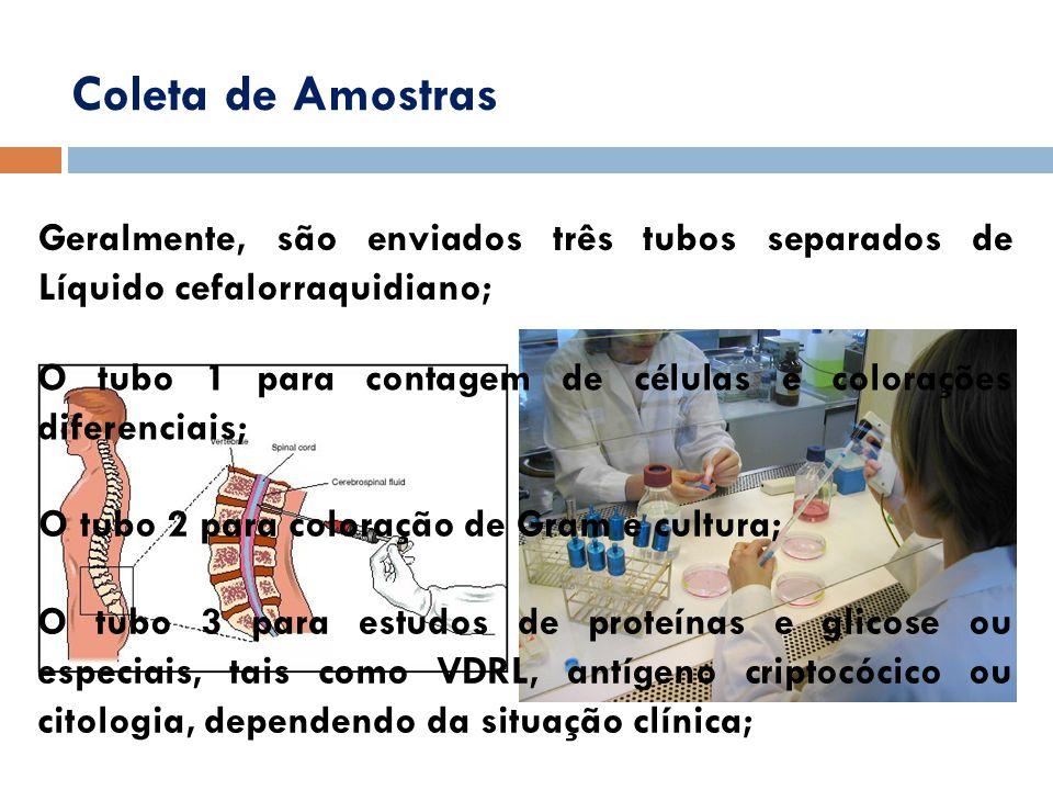 Coleta de Amostras Geralmente, são enviados três tubos separados de Líquido cefalorraquidiano; O tubo 1 para contagem de células e colorações diferenc