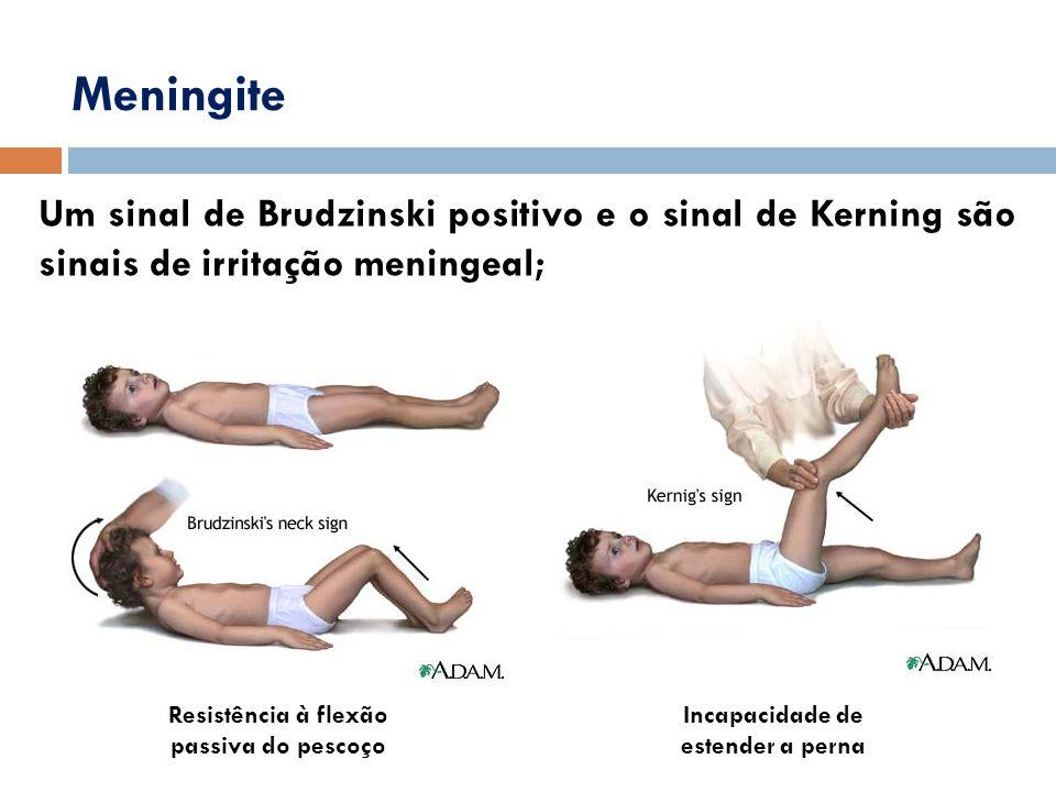 Um sinal de Brudzinski positivo e o sinal de Kerning são sinais de irritação meningeal; Meningite Resistência à flexão passiva do pescoço Incapacidade