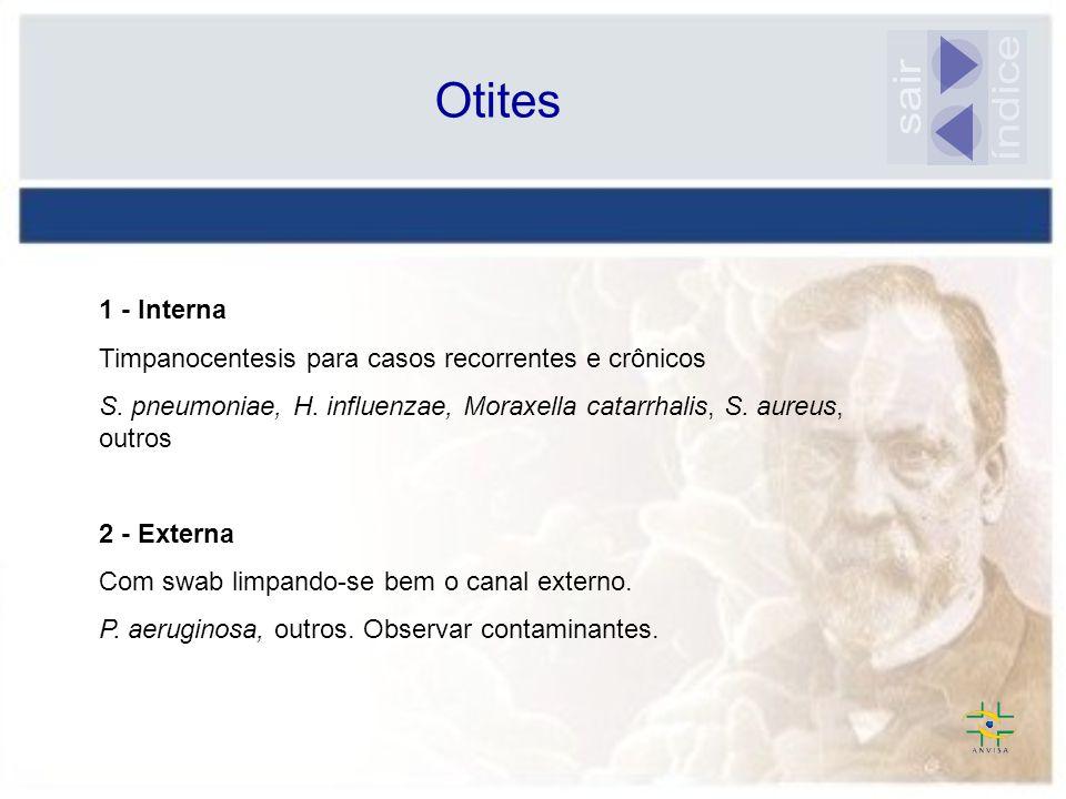 Otites 1 - Interna Timpanocentesis para casos recorrentes e crônicos S. pneumoniae, H. influenzae, Moraxella catarrhalis, S. aureus, outros 2 - Extern