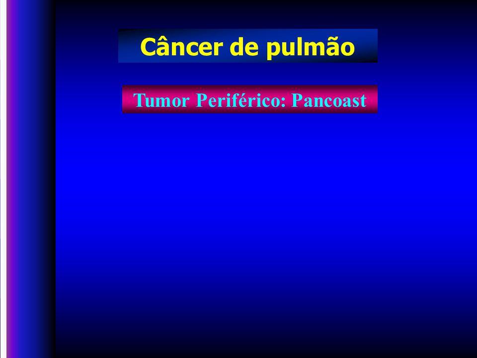 Tumor Periférico: Pancoast Câncer de pulmão