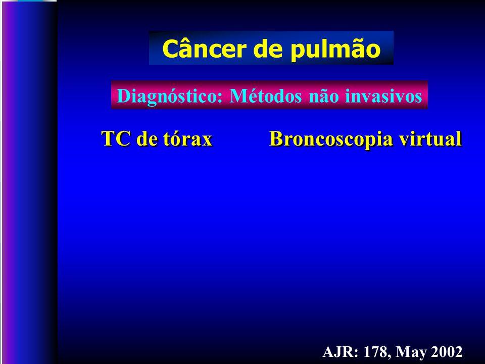 Diagnóstico: Métodos não invasivos Câncer de pulmão AJR: 178, May 2002 TC de tórax Broncoscopia virtual
