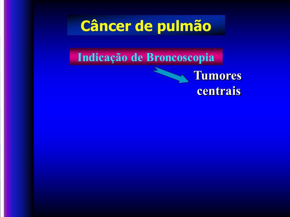 Tumores centrais Tumores centrais Indicação de Broncoscopia Câncer de pulmão