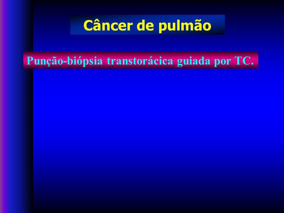 Punção-biópsia transtorácica guiada por TC. Câncer de pulmão