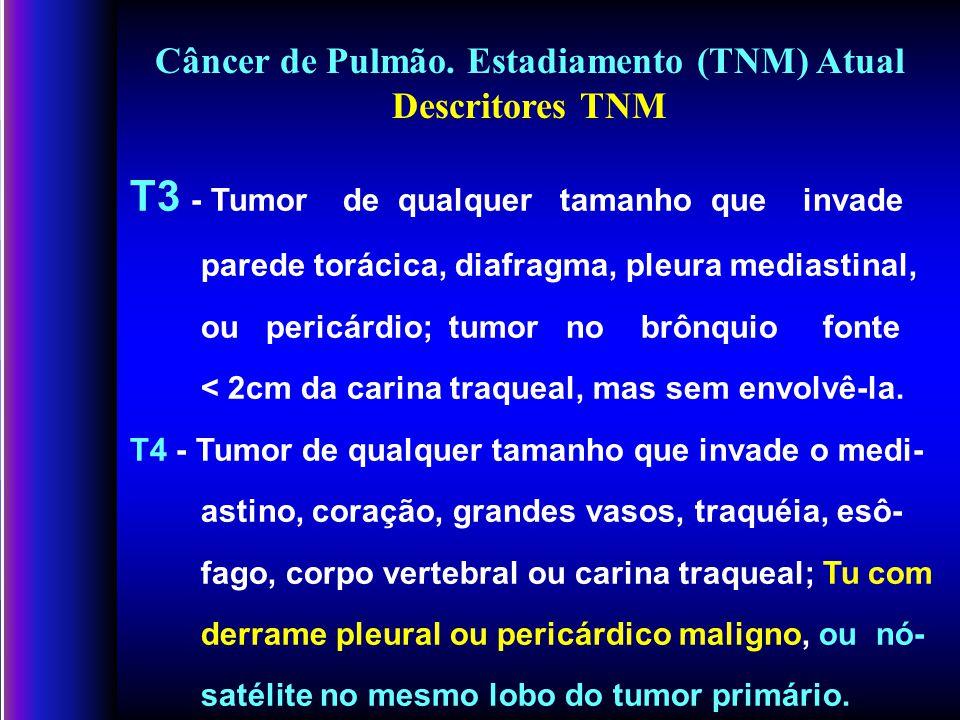 Câncer de Pulmão.