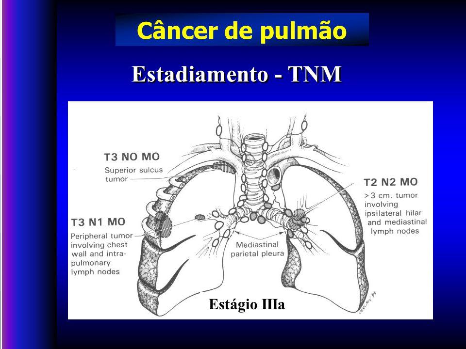 Estadiamento - TNM Câncer de pulmão Estágio IIIa