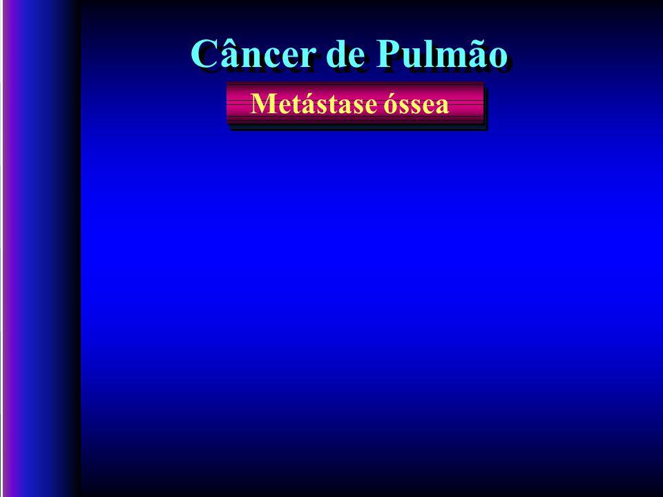 Metástase óssea Câncer de Pulmão