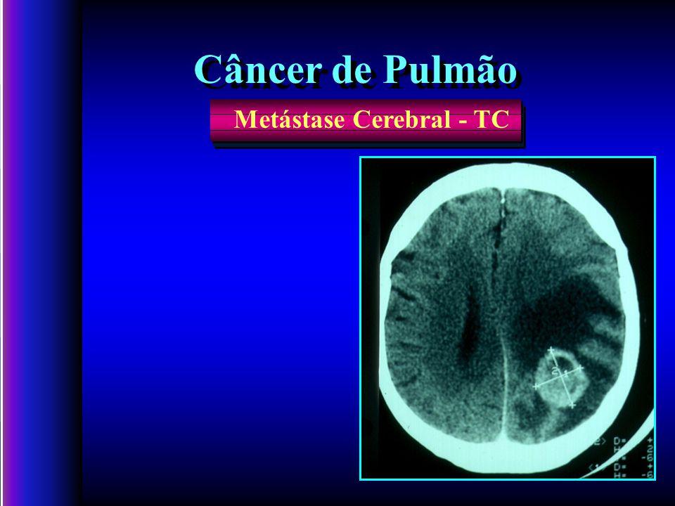 Metástase Cerebral - TC Câncer de Pulmão