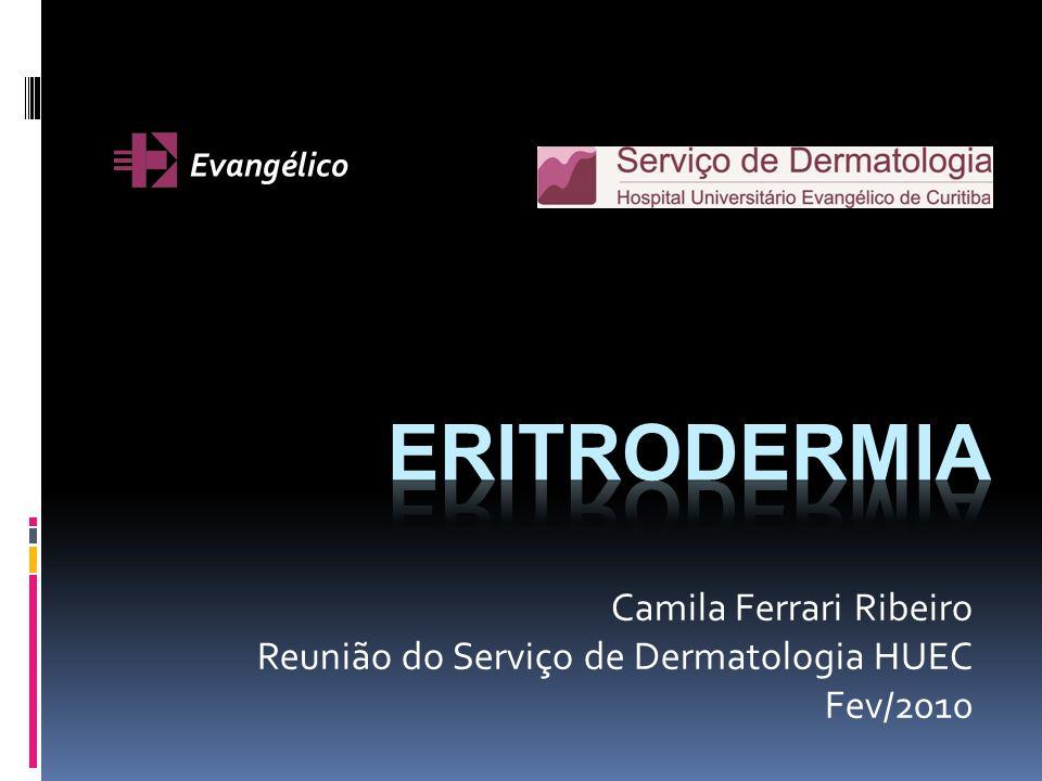 Dermatite atópica Eritrodermia na doença moderada a severa.
