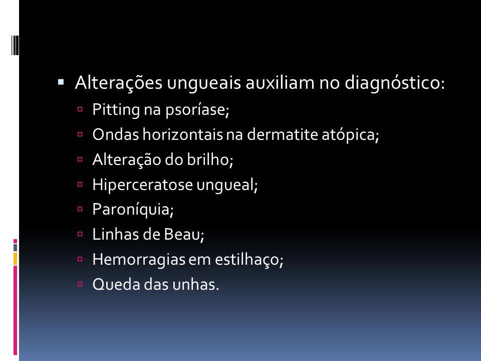 Alterações ungueais auxiliam no diagnóstico: Pitting na psoríase; Ondas horizontais na dermatite atópica; Alteração do brilho; Hiperceratose ungueal;