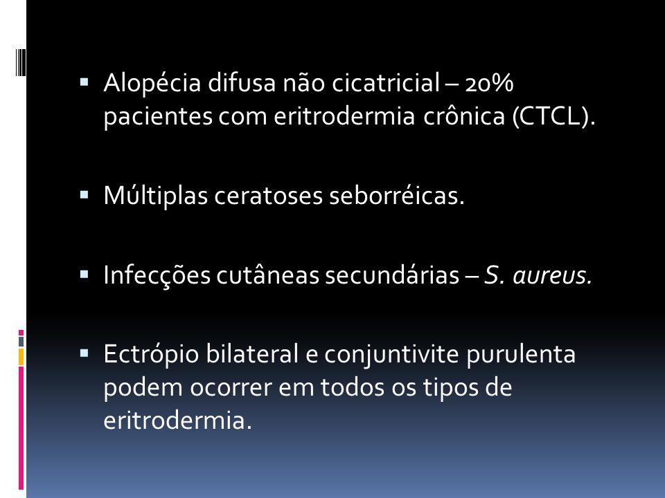Alopécia difusa não cicatricial – 20% pacientes com eritrodermia crônica (CTCL). Múltiplas ceratoses seborréicas. Infecções cutâneas secundárias – S.