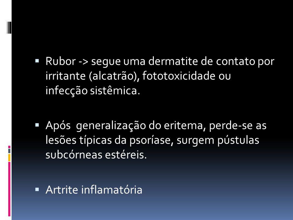Rubor -> segue uma dermatite de contato por irritante (alcatrão), fototoxicidade ou infecção sistêmica. Após generalização do eritema, perde-se as les