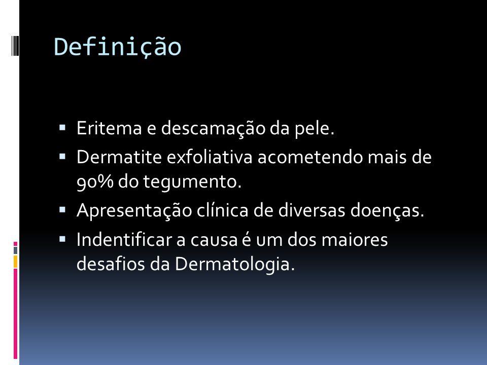 Epidemiologia Poucos dados prevalência e incidência; 2 a 4 homens: 1 mulher; Média de idade: 48 a 52 anos; Causas mais comuns – adultos: Dermatites (atópica, contato e seborréica) Psoríase Reações à drogas Linfoma cutâneo de células T (CTCL)