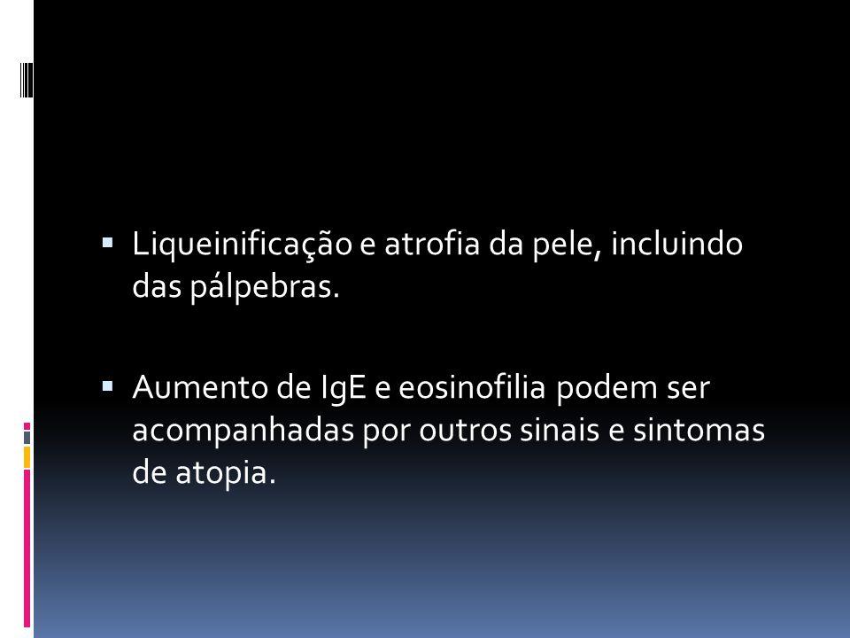 Liqueinificação e atrofia da pele, incluindo das pálpebras. Aumento de IgE e eosinofilia podem ser acompanhadas por outros sinais e sintomas de atopia