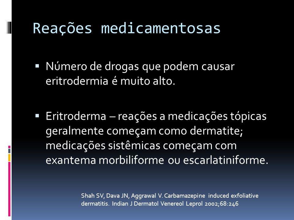 Reações medicamentosas Número de drogas que podem causar eritrodermia é muito alto. Eritroderma – reações a medicações tópicas geralmente começam como