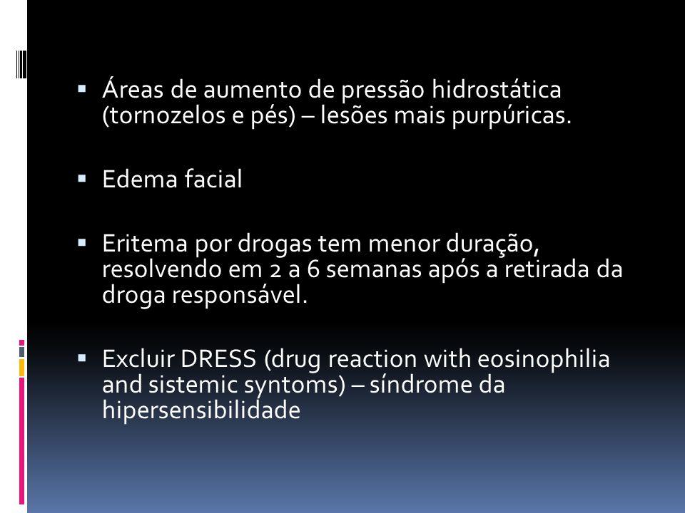 Áreas de aumento de pressão hidrostática (tornozelos e pés) – lesões mais purpúricas. Edema facial Eritema por drogas tem menor duração, resolvendo em