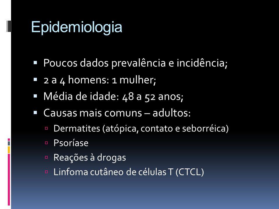 Eritrodermia idiopática Em 1/3 dos pacientes nenhuma causa é encontrada Homens idosos Curso crônico Eritrodermia muito pruriginosa linfadenopatia Queratodermia palmo-plantar