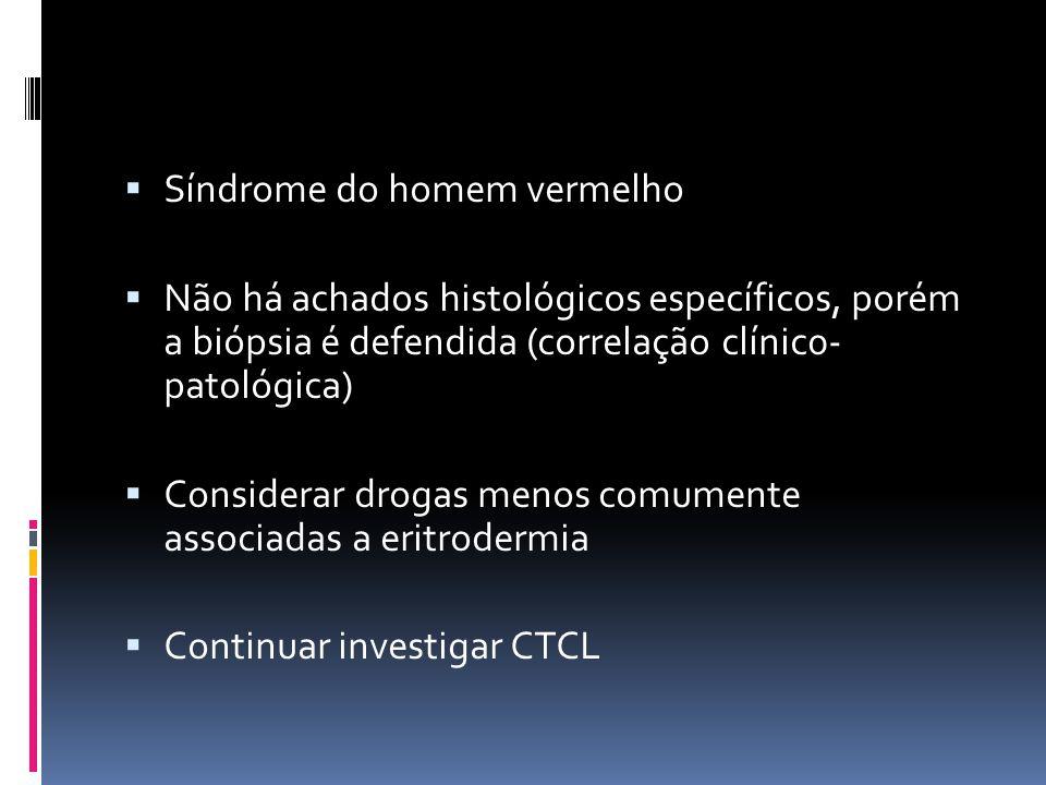 Síndrome do homem vermelho Não há achados histológicos específicos, porém a biópsia é defendida (correlação clínic0- patológica) Considerar drogas men