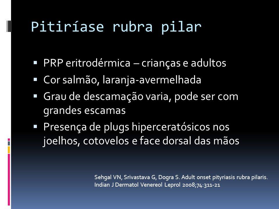 Pitiríase rubra pilar PRP eritrodérmica – crianças e adultos Cor salmão, laranja-avermelhada Grau de descamação varia, pode ser com grandes escamas Pr