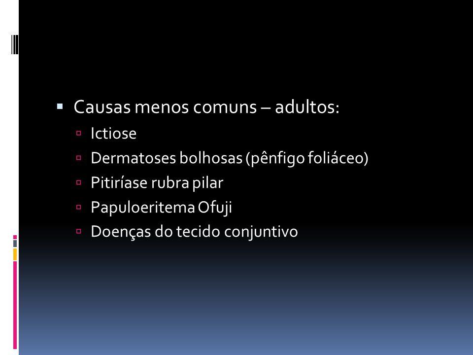 Causas menos comuns – adultos: Ictiose Dermatoses bolhosas (pênfigo foliáceo) Pitiríase rubra pilar Papuloeritema Ofuji Doenças do tecido conjuntivo