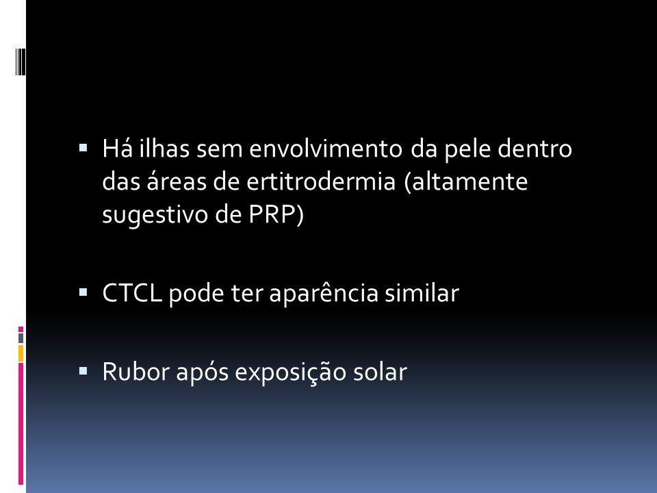 Há ilhas sem envolvimento da pele dentro das áreas de ertitrodermia (altamente sugestivo de PRP) CTCL pode ter aparência similar Rubor após exposição