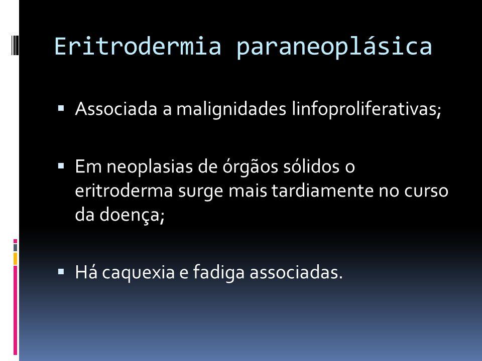 Eritrodermia paraneoplásica Associada a malignidades linfoproliferativas; Em neoplasias de órgãos sólidos o eritroderma surge mais tardiamente no curs