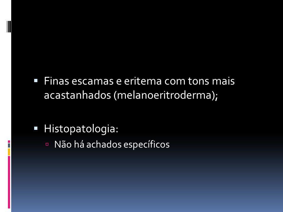 Finas escamas e eritema com tons mais acastanhados (melanoeritroderma); Histopatologia: Não há achados específicos