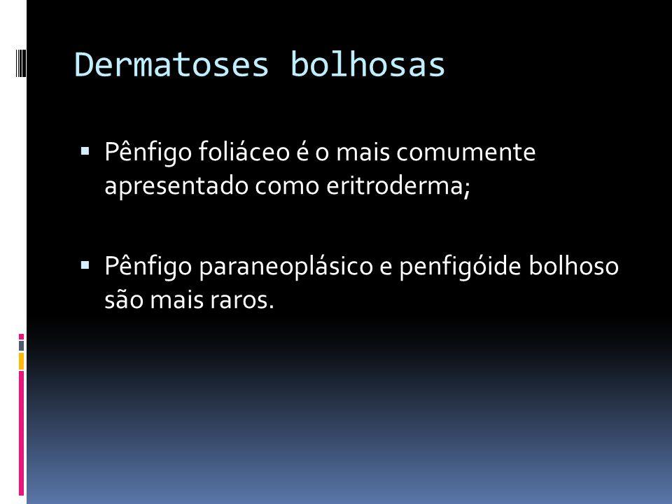 Dermatoses bolhosas Pênfigo foliáceo é o mais comumente apresentado como eritroderma; Pênfigo paraneoplásico e penfigóide bolhoso são mais raros.