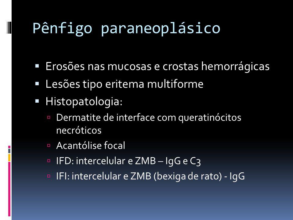 Pênfigo paraneoplásico Erosões nas mucosas e crostas hemorrágicas Lesões tipo eritema multiforme Histopatologia: Dermatite de interface com queratinóc
