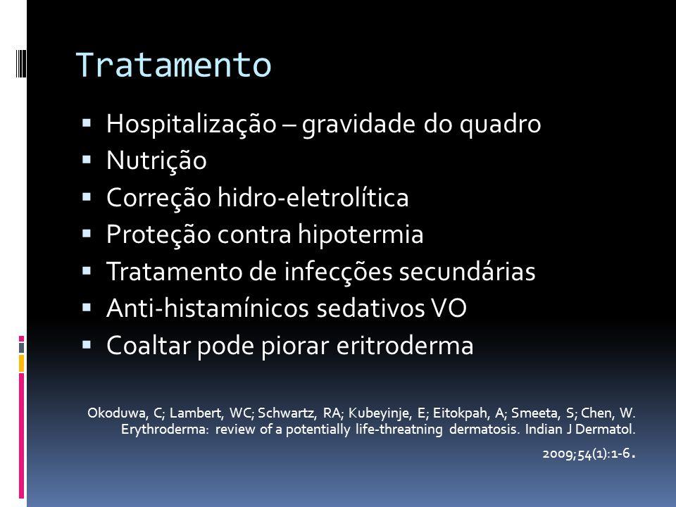Tratamento Hospitalização – gravidade do quadro Nutrição Correção hidro-eletrolítica Proteção contra hipotermia Tratamento de infecções secundárias An