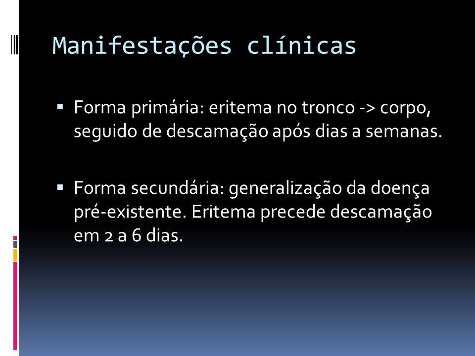 Manifestações clínicas Forma primária: eritema no tronco -> corpo, seguido de descamação após dias a semanas. Forma secundária: generalização da doenç