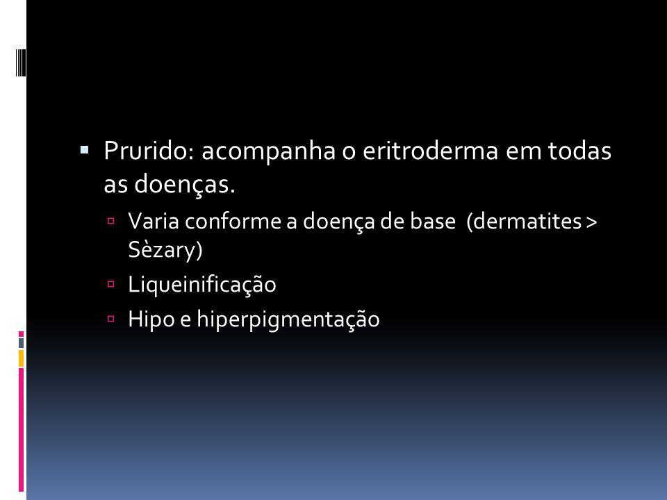 Prurido: acompanha o eritroderma em todas as doenças. Varia conforme a doença de base (dermatites > Sèzary) Liqueinificação Hipo e hiperpigmentação