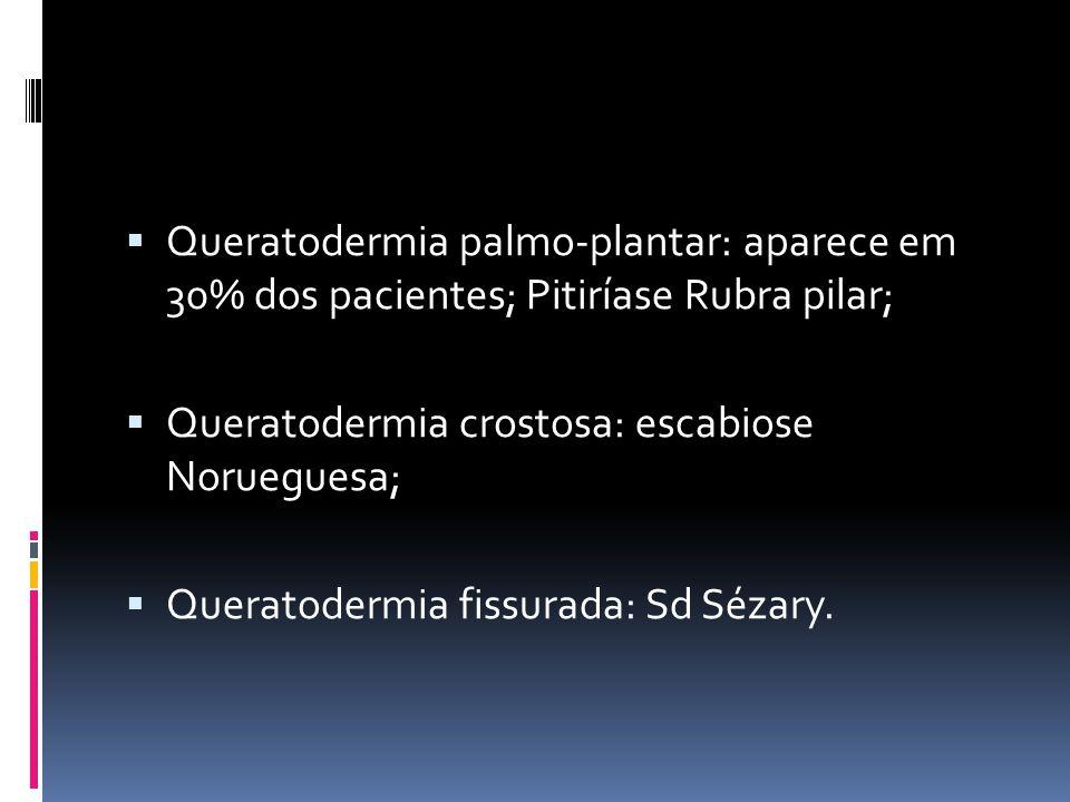 Queratodermia palmo-plantar: aparece em 30% dos pacientes; Pitiríase Rubra pilar; Queratodermia crostosa: escabiose Norueguesa; Queratodermia fissurad