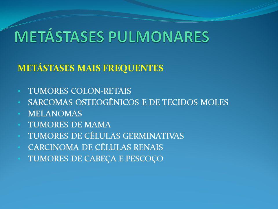 METÁSTASES MAIS FREQUENTES TUMORES COLON-RETAIS SARCOMAS OSTEOGÊNICOS E DE TECIDOS MOLES MELANOMAS TUMORES DE MAMA TUMORES DE CÉLULAS GERMINATIVAS CAR