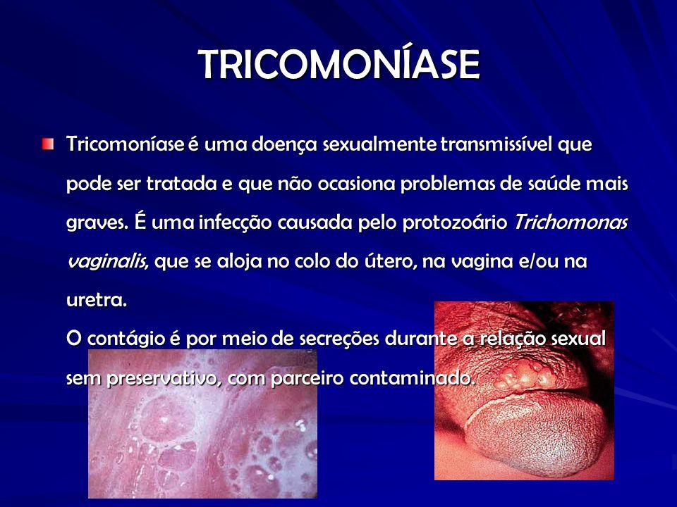 TRICOMONÍASE Tricomoníase é uma doença sexualmente transmissível que pode ser tratada e que não ocasiona problemas de saúde mais graves.