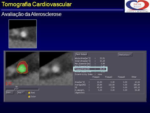Avaliação da Aterosclerose Tomografia Cardiovascular