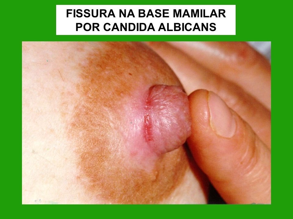 FISSURA NA BASE MAMILAR POR CANDIDA ALBICANS
