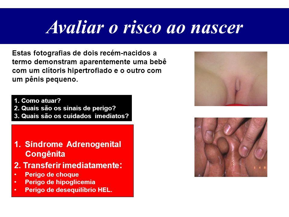 Avaliar o Risco ao Nascer Estas fotografias de dois recém-nacidos a termo demonstram aparentemente uma bebê com um clítoris hipertrofiado e o outro com um pênis pequeno.