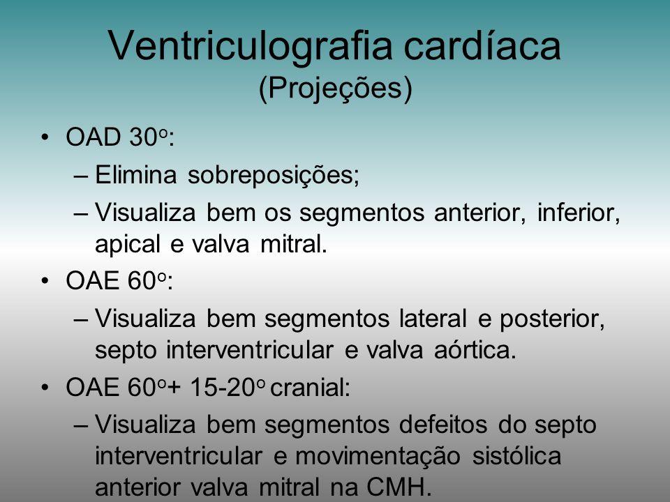 OAD 30 o : –Elimina sobreposições; –Visualiza bem os segmentos anterior, inferior, apical e valva mitral. OAE 60 o : –Visualiza bem segmentos lateral