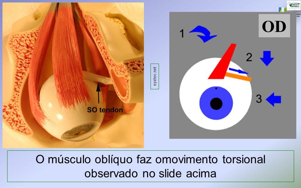 OD O músculo oblíquo faz omovimento torsional observado no slide acima eyetec.net