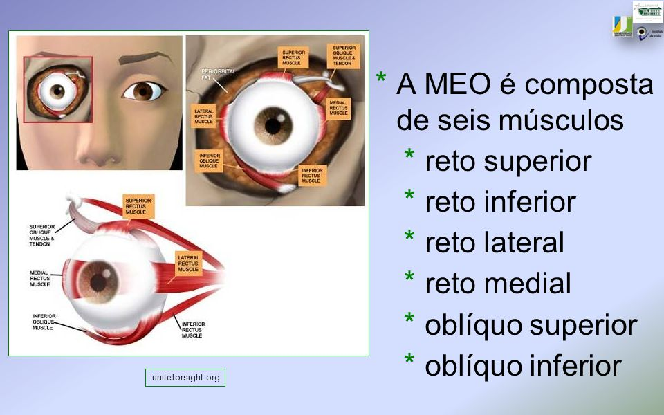 uniteforsight.org * A MEO é composta de seis músculos * reto superior * reto inferior * reto lateral * reto medial * oblíquo superior * oblíquo inferi