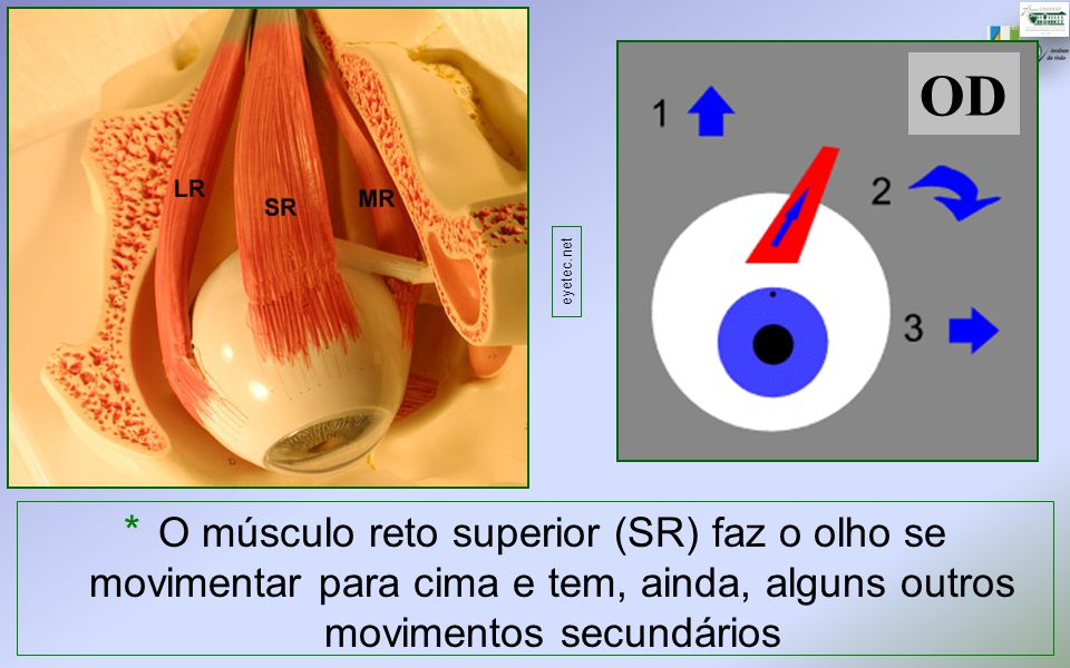 OD * O músculo reto superior (SR) faz o olho se movimentar para cima e tem, ainda, alguns outros movimentos secundários eyetec.net