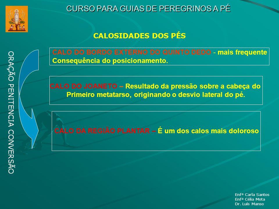 CURSO PARA GUIAS DE PEREGRINOS A PÉ ORAÇÃO PENITENCIA CONVERSÃO Enfª Carla Santos Enfª Célia Mota Dr. Luís Manso CALOSIDADES DOS PÉS CALO DO BORDO EXT