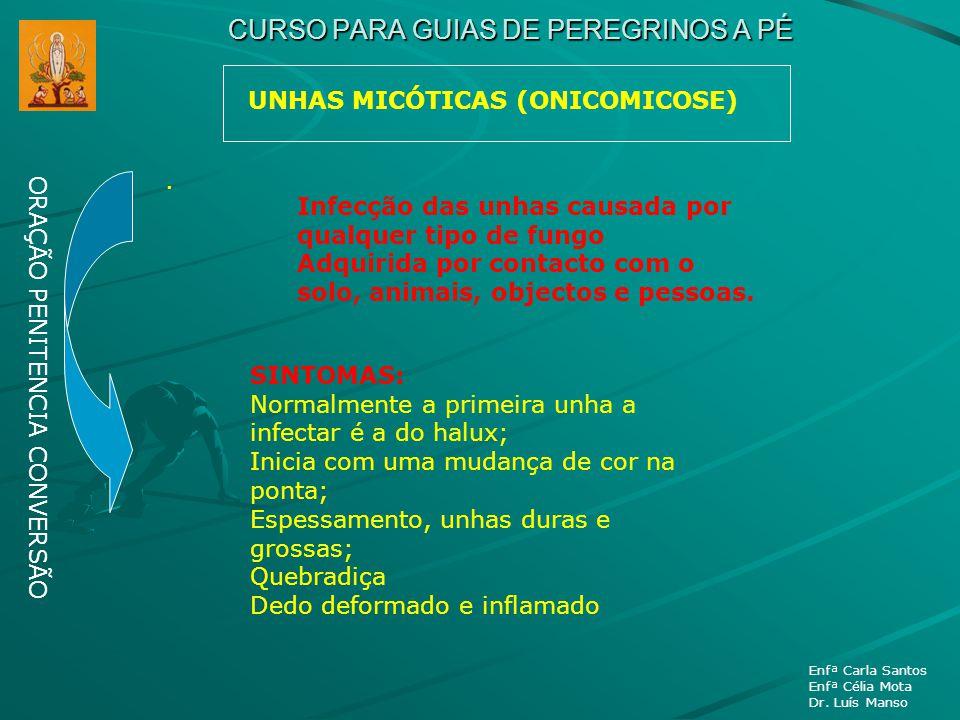 CURSO PARA GUIAS DE PEREGRINOS A PÉ UNHAS MICÓTICAS (ONICOMICOSE) ORAÇÃO PENITENCIA CONVERSÃO Enfª Carla Santos Enfª Célia Mota Dr. Luís Manso. Infecç