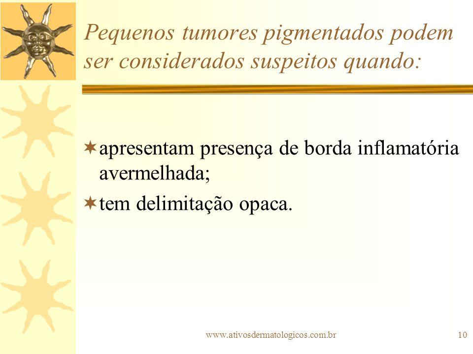 www.ativosdermatologicos.com.br10 Pequenos tumores pigmentados podem ser considerados suspeitos quando: apresentam presença de borda inflamatória aver