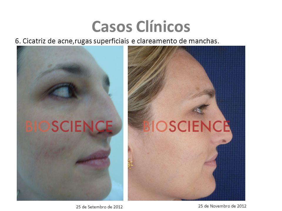 Casos Clínicos 6.Cicatriz de acne,rugas superficiais e clareamento de manchas.