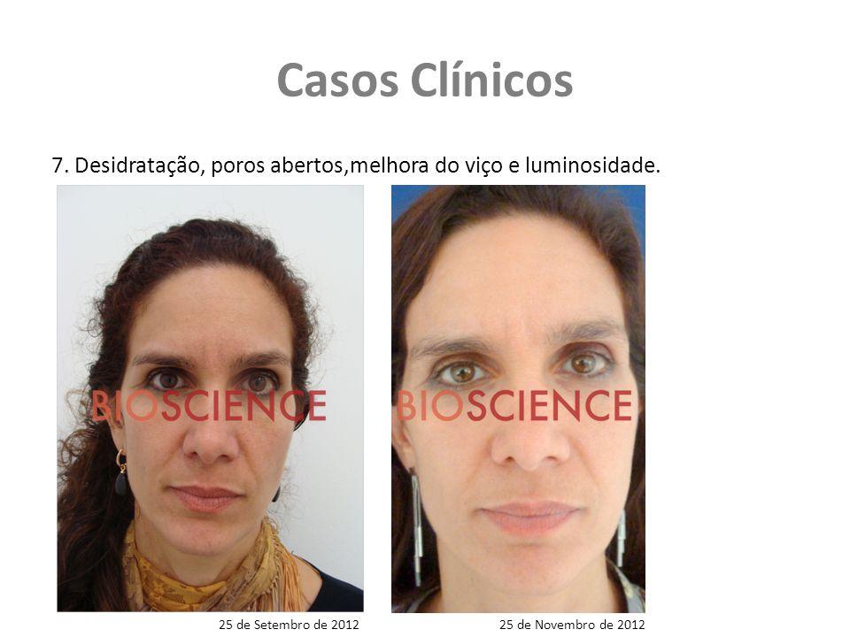 Casos Clínicos 7.Desidratação, poros abertos,melhora do viço e luminosidade.