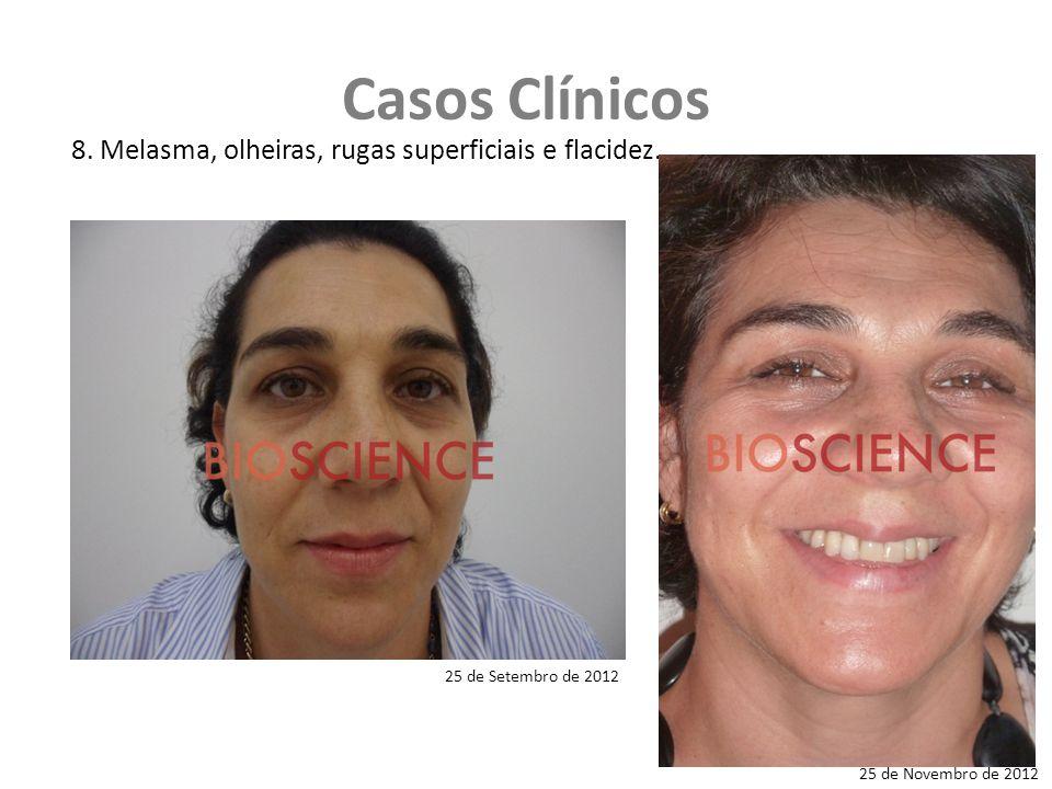 Casos Clínicos 8.Melasma, olheiras, rugas superficiais e flacidez.