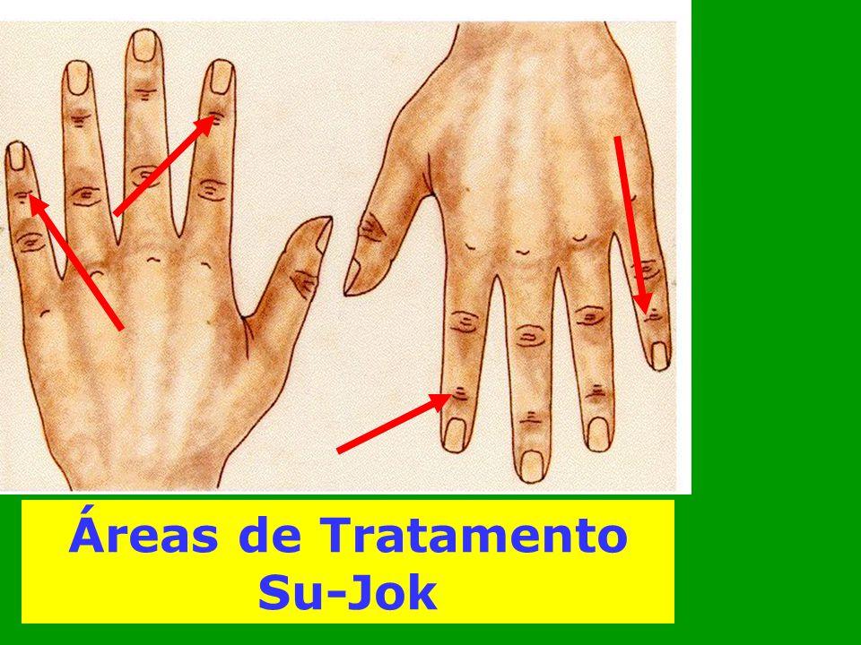Áreas de Tratamento Su-Jok