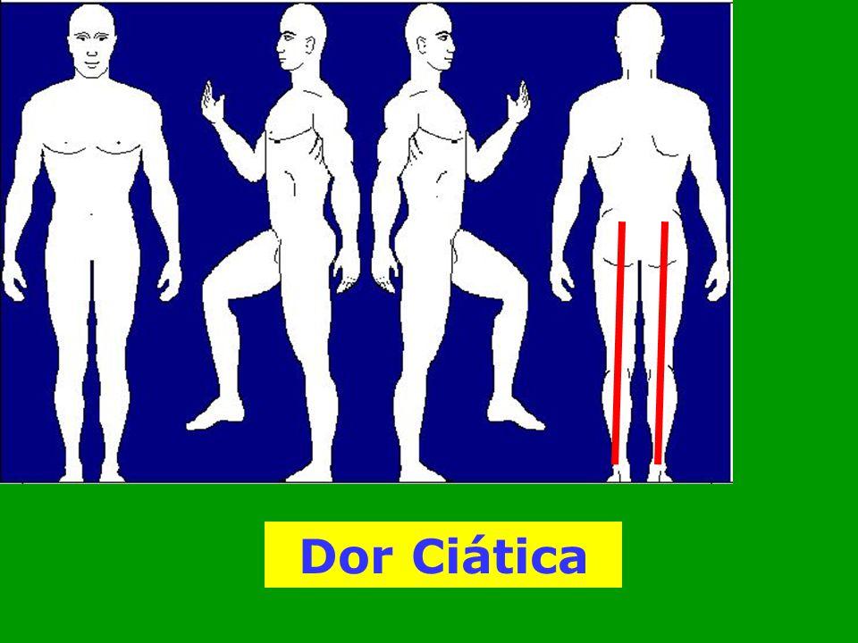 Dor Ciática